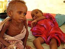 enfants somaliens qui meurent de faim
