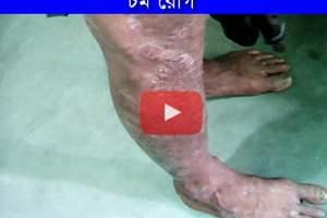 চর্ম রোগের সফল চিকিৎসা ও তার প্রমাণ। চর্ম রোগের সফল চিকিৎসা ও তার প্রমাণ। Skin 1