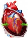 cardiac-tumors