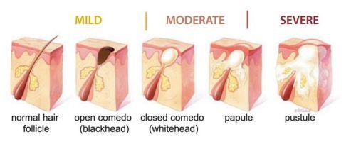 ব্রণের (acne) চিকিৎসা ও প্রতিরোধ (২৭৬ রুব্রিক ও ভিডিও টিউটোরিয়াল সহ) ব্রণের (Acne) চিকিৎসা ও প্রতিরোধ (২৭৬ রুব্রিক ও ভিডিও টিউটোরিয়াল সহ) Types of Comedones