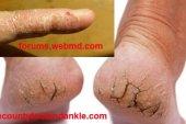 চামড়া ফাটা (Crack skin) রোগের চিকিৎসা