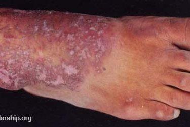 একজিমার (eczema) চিকিৎসা একজিমার (Eczema) চিকিৎসা (টিউটোরিয়াল সহ) Eczema