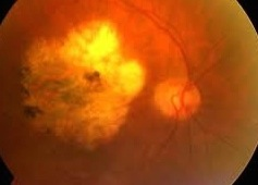 White central area of atrophy. Death of retinal cells