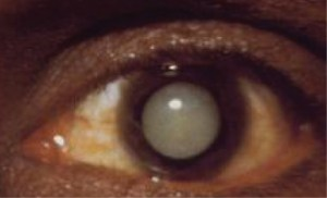 Treatment of Cataracts