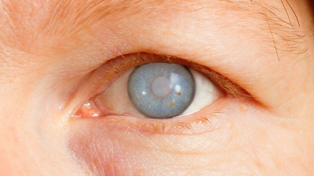 Natural Healthy Eye Drops