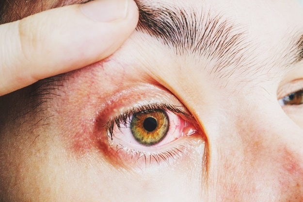 What Are Dry Eyes Symptoms? | What Causes Dry Eyes | Healing The Eye