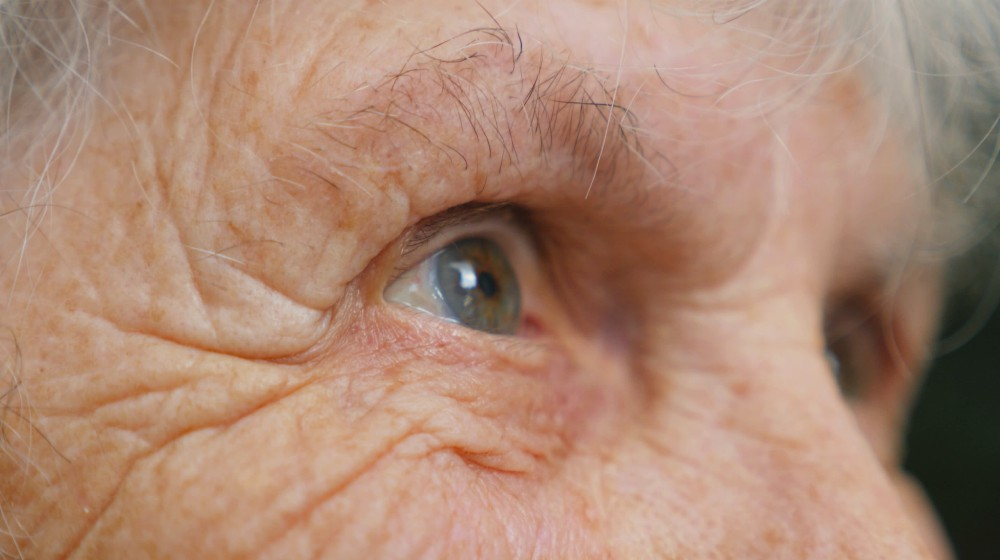 Natural Eye Health Care | Handling Eye Care With 36 Natural