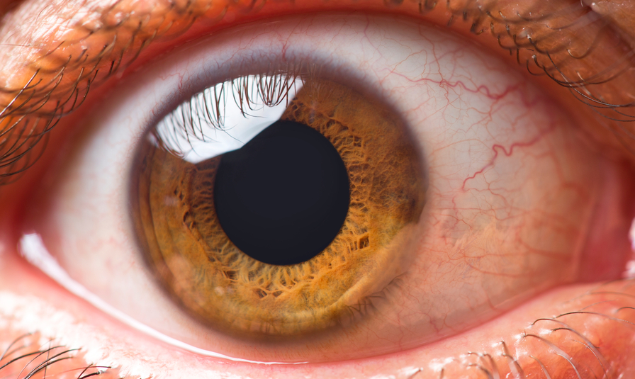 All You Must Know About Eye Floaters & Flashes