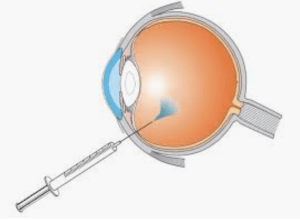A new method to administer Stem Cells for the treatment of eye disease