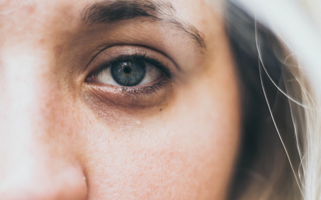 How Homeopathy Can Help With Eye Problems?