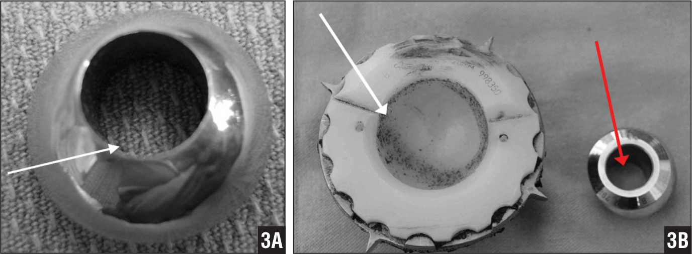 Photographs showing complete perforation of the superior aspect of the femoral head (white arrow) (A) and metallic debris embedded within the cup (white arrow) and worn liner along with an inferior view of perforated femoral head (black arrow) (B).