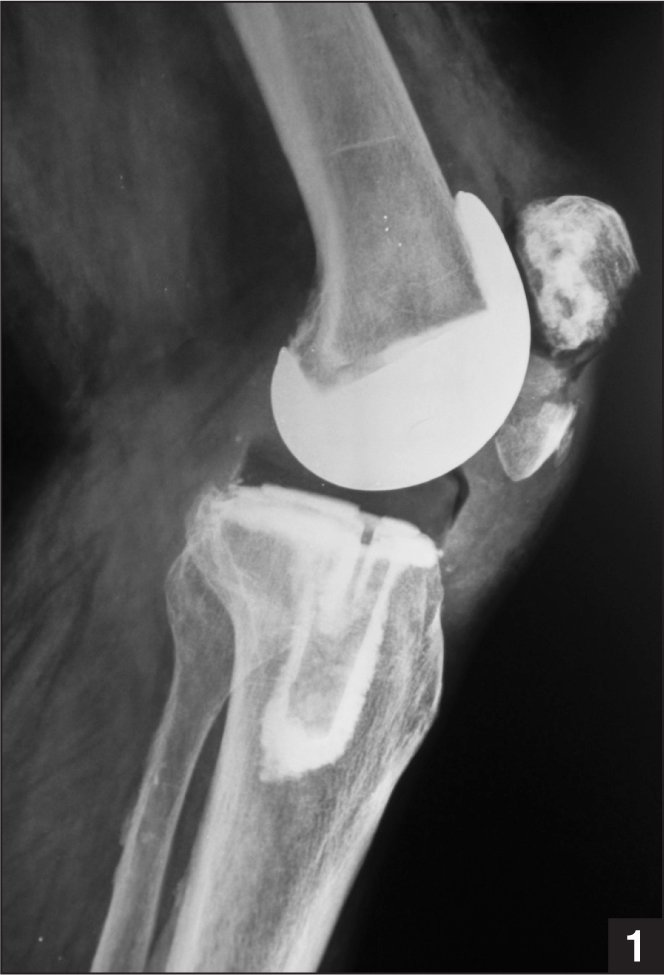 Preoperative lateral radiograph showing a periprosthetic patellar fracture. The distal fragment is comminuted and separated from the proximal fragment by approximately 15 mm. Because the polyethylene component was well-fixed to the proximal fragment, the fracture was classified as type II.4