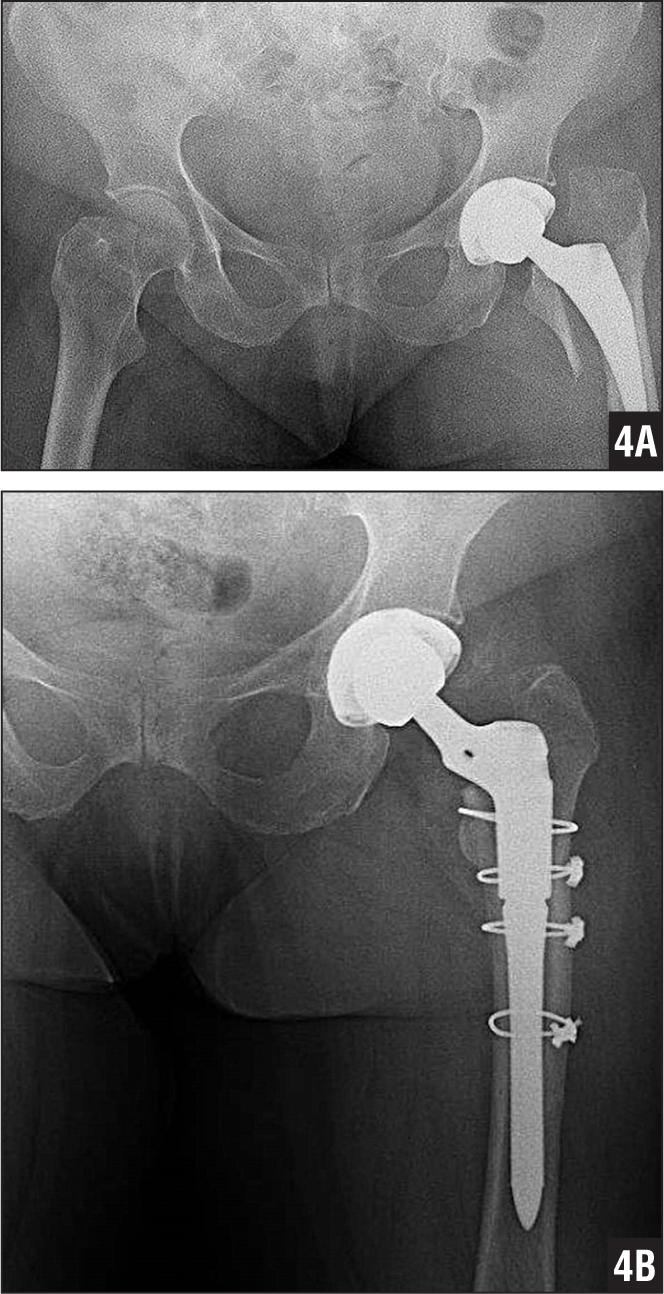 Anteroposterior radiographs showing a Vancouver type B2 periprosthetic fracture 8 days after primary total hip arthroplasty with a short femoral component (A) and femoral revision with a modular long-stem femoral component with cerclage (B).