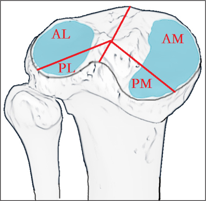 Schematic drawing showing the 4 articular plateau quadrants of the tibial plateau: anterolateral (AL), posterolateral (PL), anteromedial (AM), and posteromedial (PM).