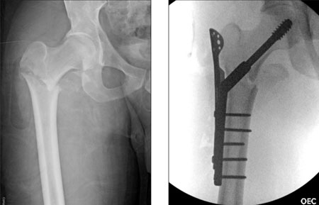 Figures 2 and 3. This displaced 31 A3 fracture was fixed with a sliding screw and sideplate and lateral buttressing with a trochanteric stabilizing plate.
