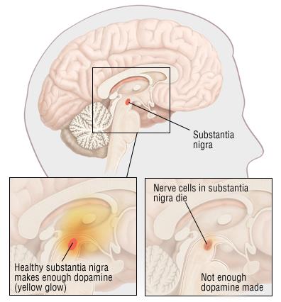 Parkinson's Disease - Harvard Health