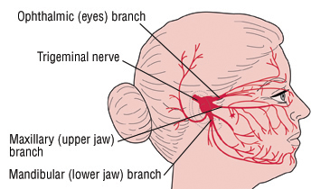 Sinus headache and the trigeminal nerve showing where pain may be felt.