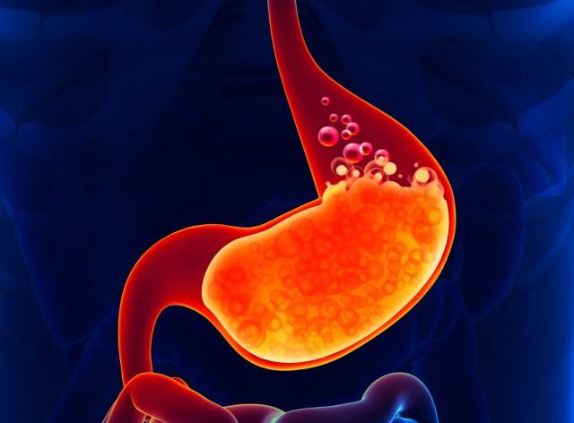 Image result for heartburn