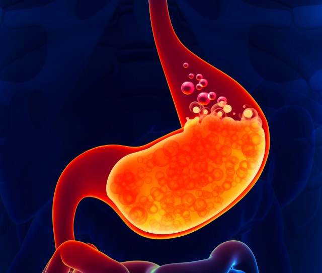 Heartburn Is A Common Problem Its Caused By The Backwash Of Stomach Acid Into The Esophagus The Tube Connecting The Mouth And Stomach