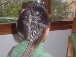 How To Remove Lice Eggs From Hair Naturally At Home