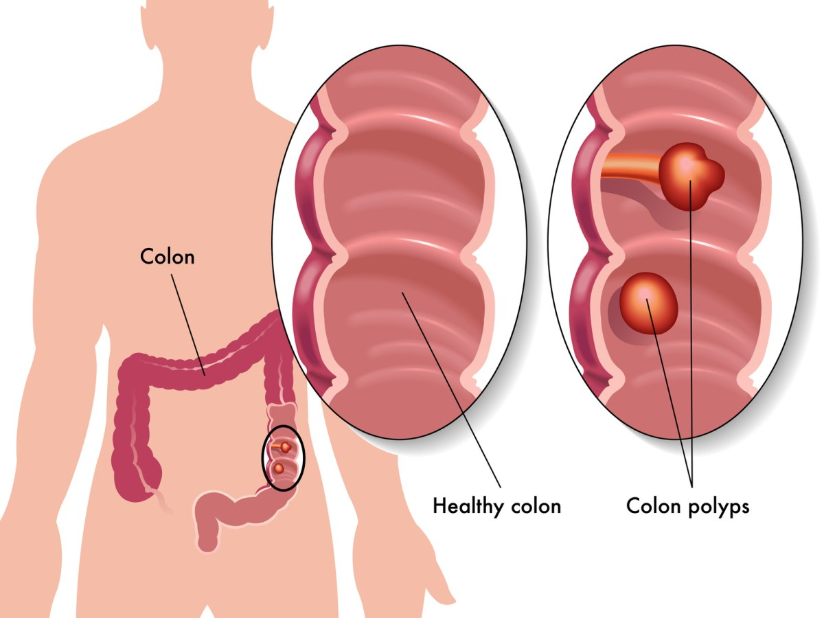 Ways To Lower Your Risk of Colon Cancer