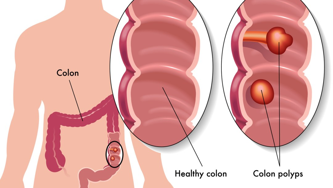 Ways to reduce risk of colon cancer