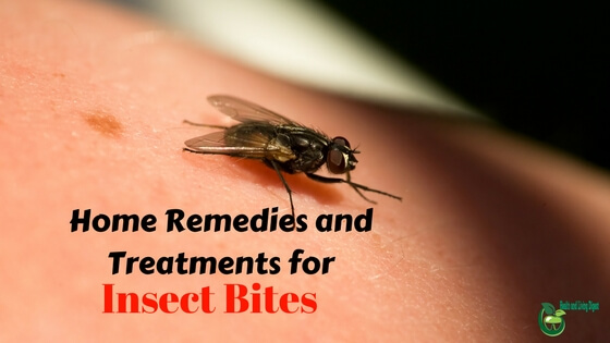Home remedies to naturally treat insect bites