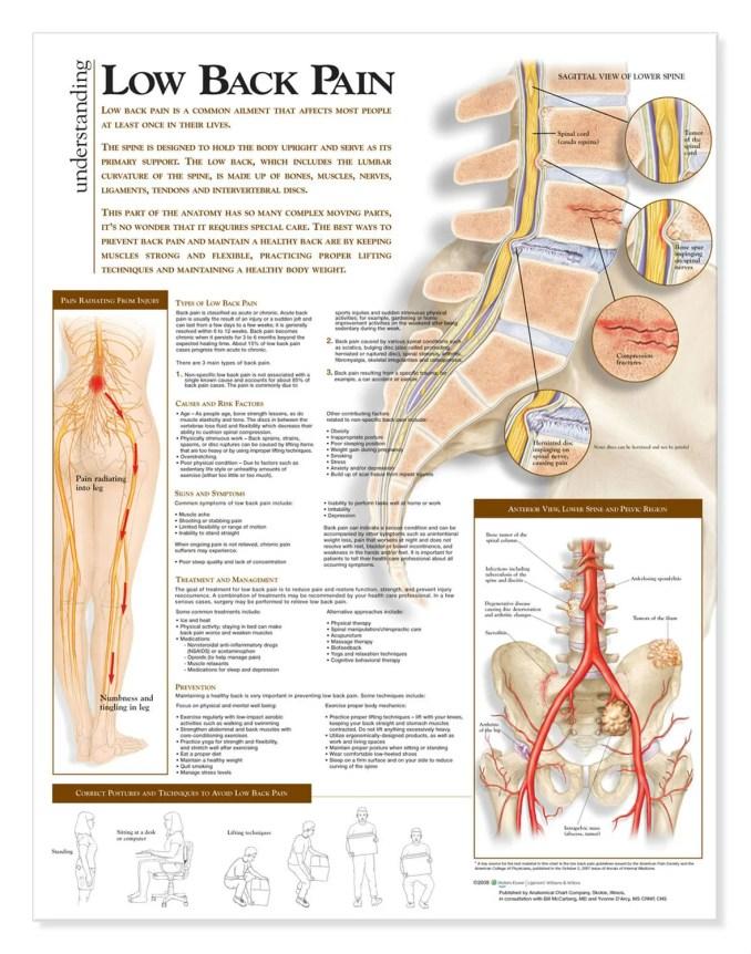 Lower Back Pain - Understanding