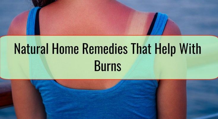 Natural Home Remedies That Help With Burns