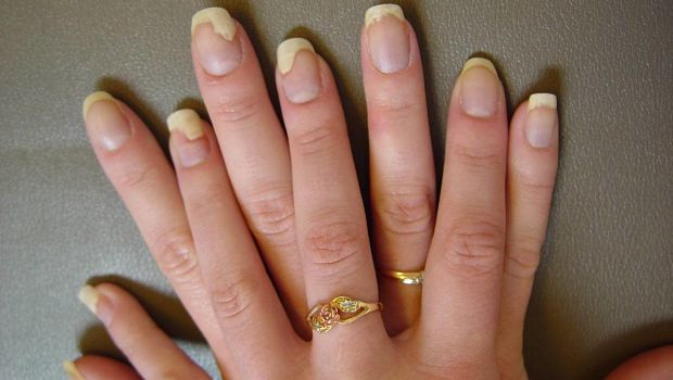 How to Get Rid of Nail Fungus Naturally | Health Beauty Aid