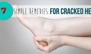 How to Heal Cracked Heels