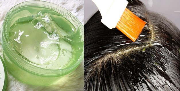Aloe Vera Gel for Dandruff