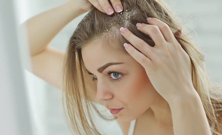 How to Get Rid of Dandruff Fast