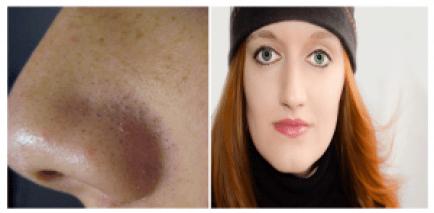 remove blackheads permanently