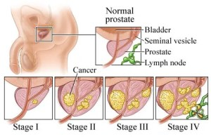Prostate Cancer Stages | HealthcareOnline