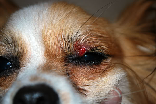 Ca By A Staphylococcus Bacterial Infection An Eye Sty Is Essentially Inflammation In The Glands At Eyelash Base