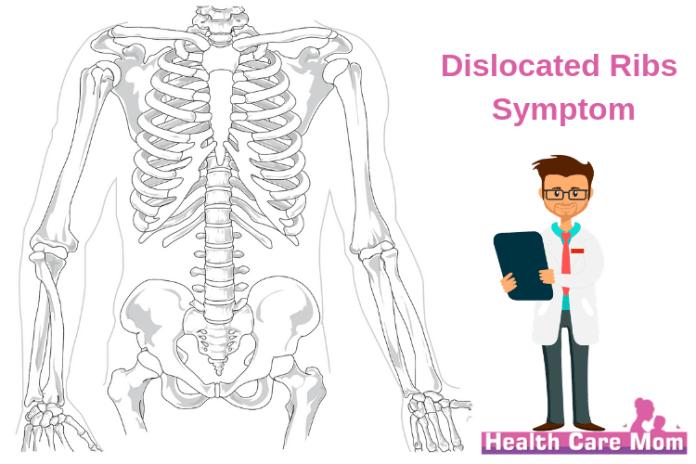 Dislocated rib symptom