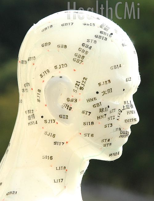 Scalp points for the treatment of Alzheimer's disease are in the study.