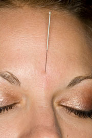Acupuncture treats HPB.