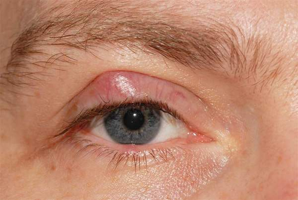 Causes What Chalazion