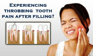 throbbing tooth pain after filling
