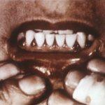 Scorbutic gums
