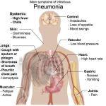 Do I Have Pneumonia?