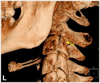Close Look At C2 Left Articulation
