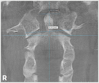 Coronal View of Upper Cervical Spine