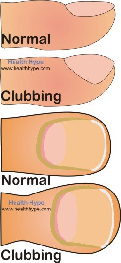 Vertical Ridges In The Nail Plate Anatomy