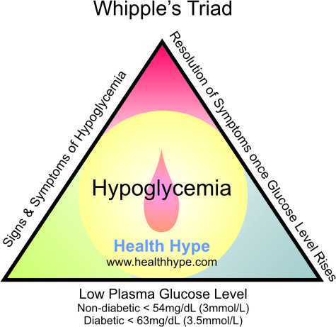 Low Blood Sugar (Glucose) and Hypoglycemia Symptoms ...