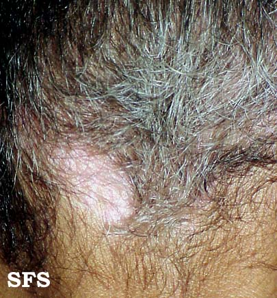 Forehead Rash Skin Problems Causes And Pictures