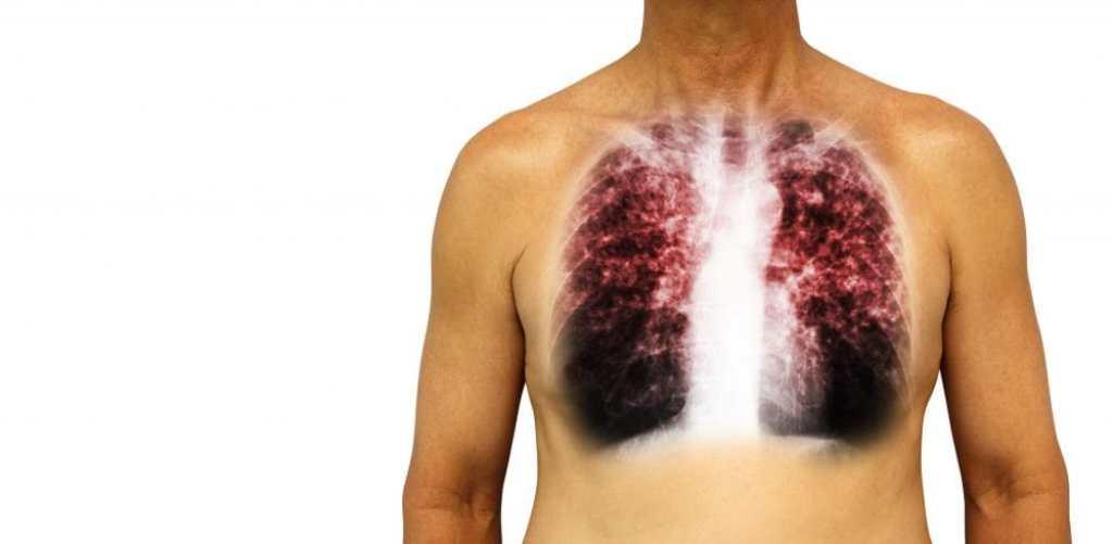 COPD Image ID : 83587190 Copyright : Puwadol Jaturawutthichai