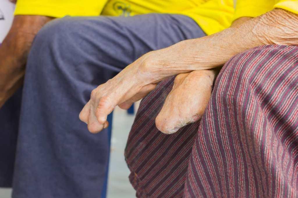 leprosy elimination Image ID: 81042848 (L)